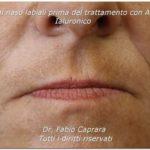 Acido ialuronico viso