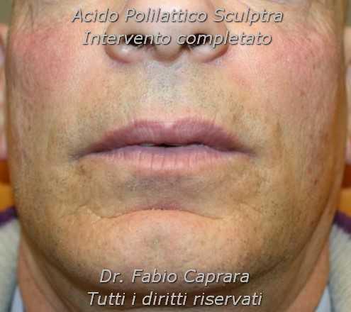 Rimodellamento viso