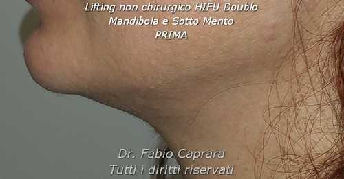 Lifting non chirurgico