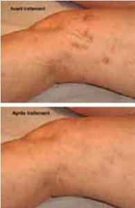 Eliminazione capillari