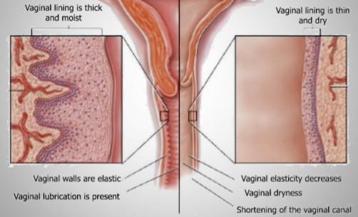 Ringiovanimento vaginale