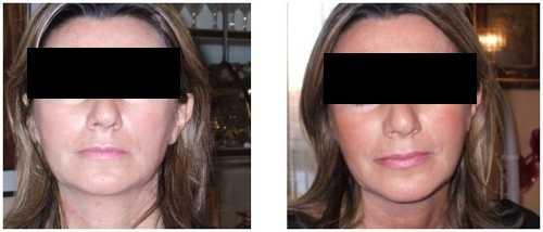 Lifting viso non chirurgico